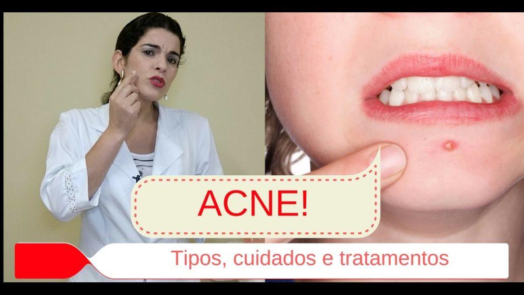 passo a passo diário para tratar Acne tratamento de acne