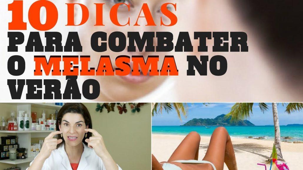 10 dicas de como tratar melasma no verao